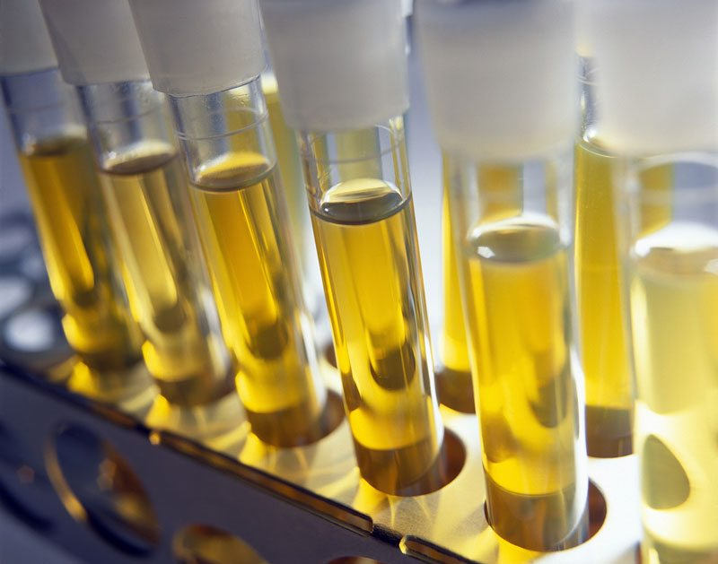 urine for microbial fuel cells